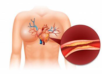 oorzaken hartaanvallen
